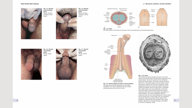 Male Genital Skin Disease pages 2-3