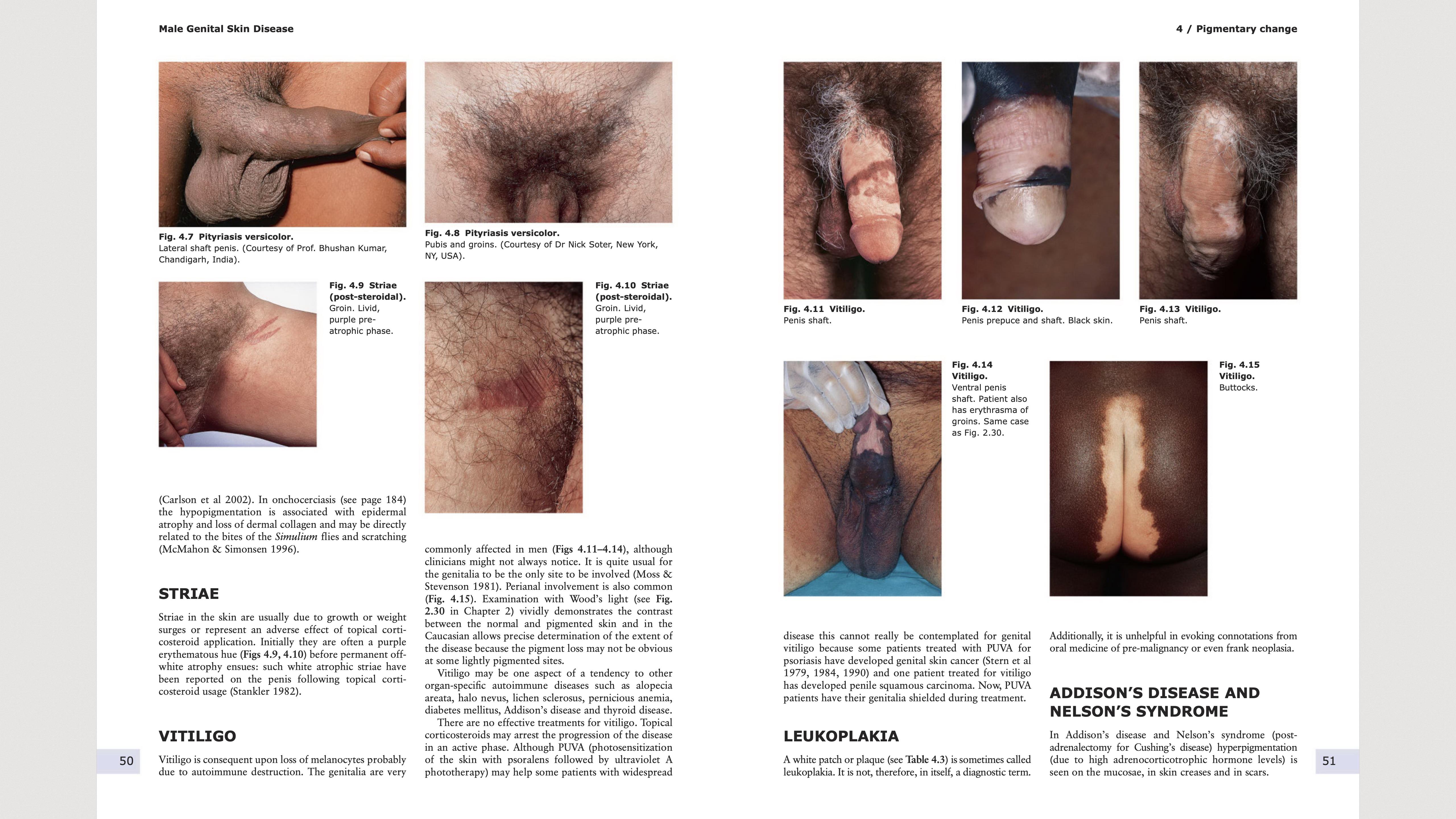 Male genital Skin Disease pages 50-51